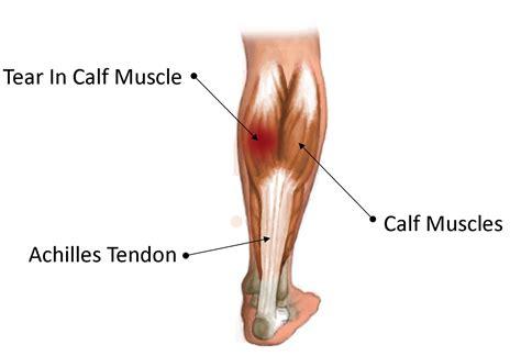 freehand calf muscle skin tear image gallery soleus strain