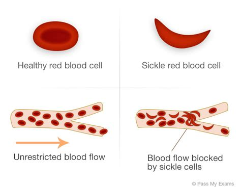 sickle cell diagram inherited diseases sickle cell anaemia pass my exams