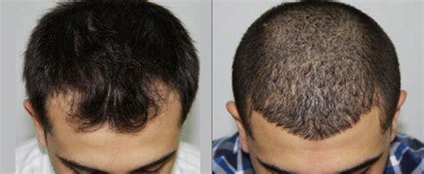 Hair Transplant Cost 2014 | hair transplant cost 2014 hair transplant cost in dubai