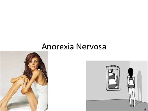 Sectioned For Anorexia by Anorexia Nervosa Pictures To Pin On Pinsdaddy