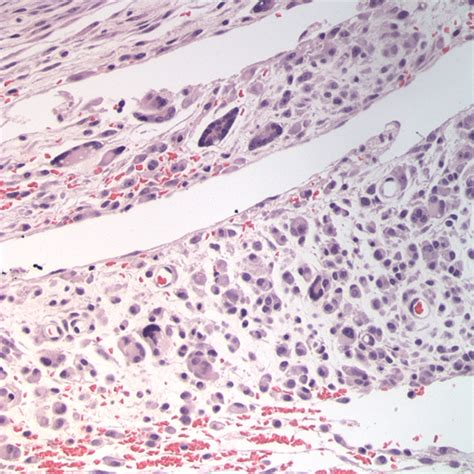 soft tissue sarcoma in dogs mesenchymal tumors eclinpath