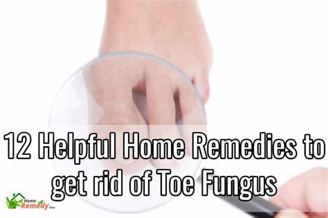 12 helpful home remedies to get rid of toe fungus home