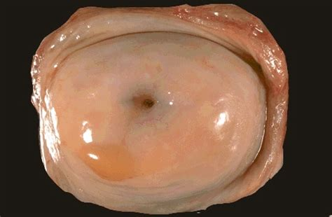 picture of small viginal normal cervix gross picture