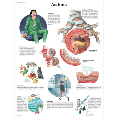 diagram poster anatomical charts and posters anatomy charts asthma