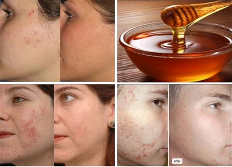 how to fade acne scars dark brown hairs use honey to fade scars slow down aging of skin and