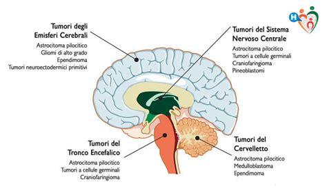 tumore in testa sintomi tumore al cervello sintomi diagnosi e cure