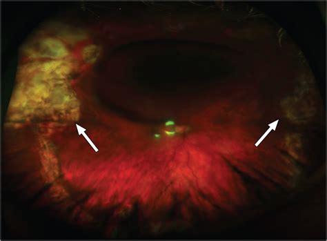 diode laser cycloablation neurotrophic corneal ulceration cornea jama ophthalmology the jama network