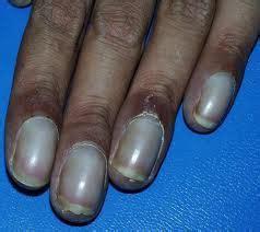 ashen color skin ashen gray cyanosis