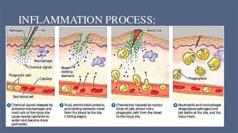 pattern analysis of inflammatory skin diseases inflammation process pictures to pin on pinterest thepinsta