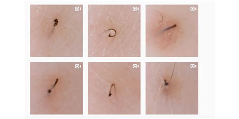 best things to do for an ingrown hair tweezist instagram account shows ingrown hairs being