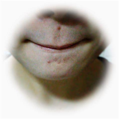 Acne Chin Detox by Nana Papaya Review 3m Nexcare Acne Patch