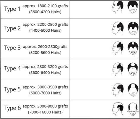 pattern grading costs the 25 best male baldness ideas on pinterest male