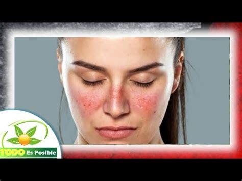 sle terminal report que es el lupus y sintomas de la enfermedad lupus q es