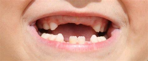 imagenes de niños que se caen cu 225 ndo salen y cu 225 ndo caen los dientes de leche bekia padres