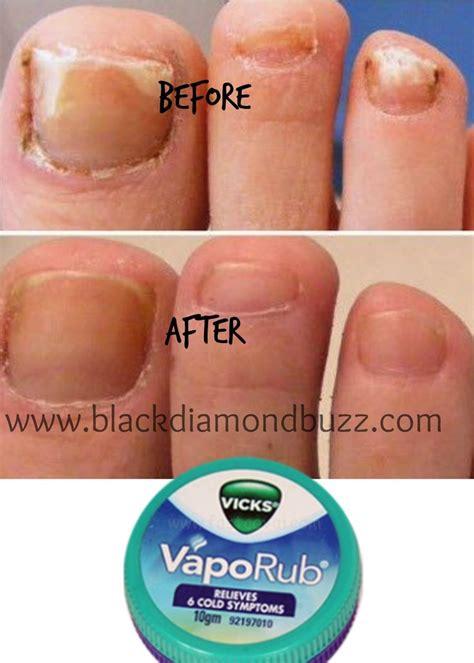 Vicks Vapor Rub Detox by Pin By Joseph Health Fitness Home Remedies Tips