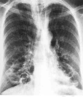 Ring Jalan 3 8 4 Cm Tebal Nikel Peralatan Jahit dokter umum bronkiektasis