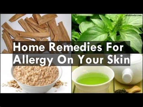 home remedies for allergy on your skin