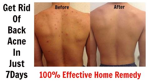 get rid of back acne in just 7 days 100 effective home