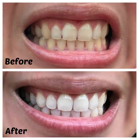 professionally whiten  teeth  home  smile