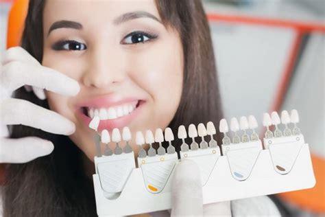 Berapa Untuk Pemutihan Gigi fakta dan cara pemutihan gigi alodokter