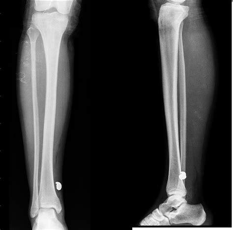 imagenes para perfil normal radiologia septiembre 2012