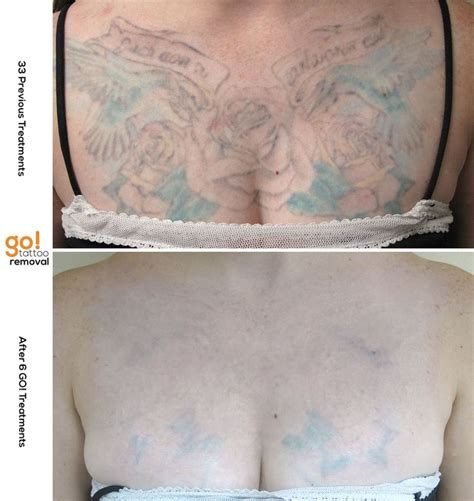 tattoo removal dayton ohio 1000 images about tattoo removal in progress on pinterest