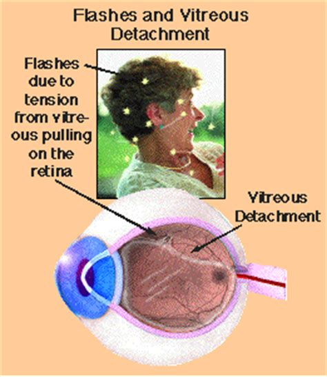 floaters in eye with flashes of light eye floaters headache dizziness natural herbal medicine