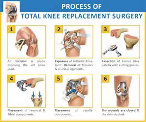 Pain In Back Of Knee After Knee Replacement Surgery by Physio Knowledge Total Knee Replacement Rehabilitation