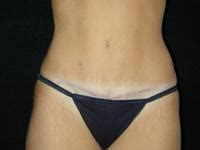 Is Tummy Tuck Safe After C Section by Tummy Tuck After C Section Before After Photos