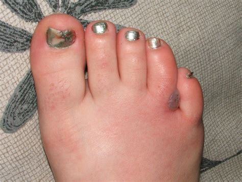 gallery  skin boil pictures   infections