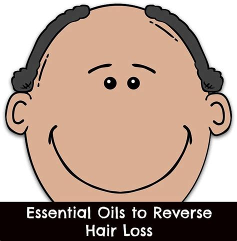 essential oil to prevent hair loss 10 best hair loss images on pinterest hair loss health