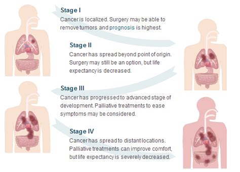 Pleural Mesothelioma Stages by Gumoti Mesothelioma Expectancy After Diagnosis