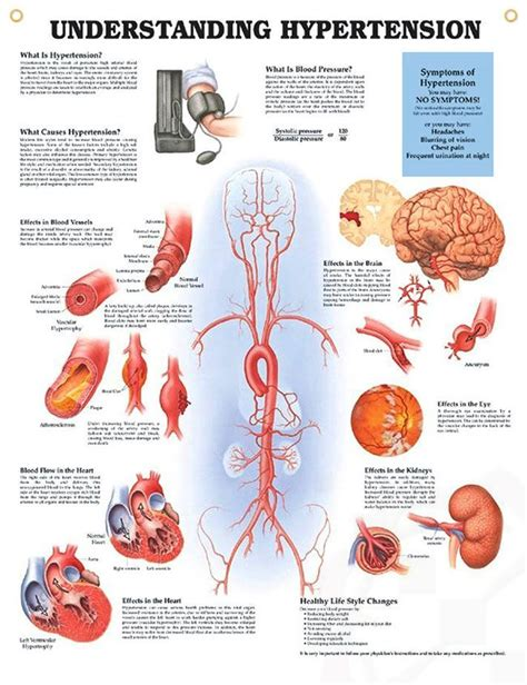 blood pressure swings causes hypertension anatomy poster discus blood pressure and