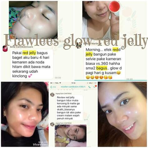 Serum Ms Glow jelly ms glow by cantik skincare original bpom