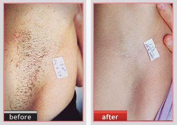 laser hair removal clean slate laser beauty amp esthetics