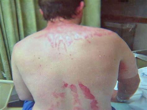 banana boat burns banana boat aerosol sunscreen recalled after stow man