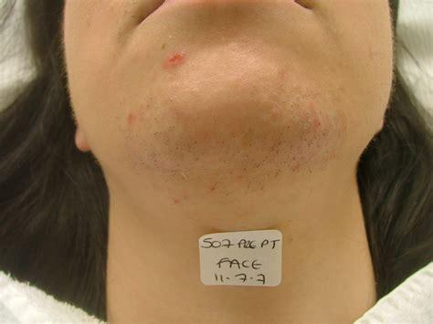 tattoo removal shrewsbury gallery shrewsbury cosmetic dentist shropshire