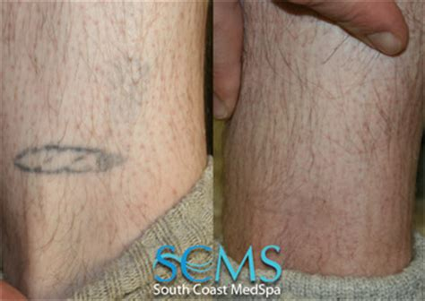 laser tattoo removal los angeles removal eight treatments models picture