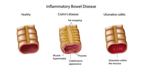 Crohn S Stool by Fecal Matter Transplantation Helpful In The Fight Against