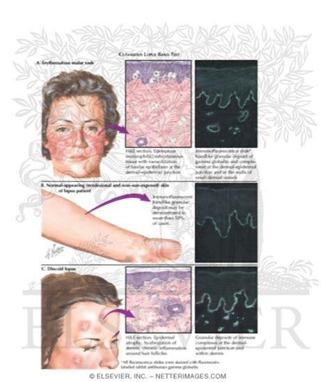 lupus band test lupus band test 28 images lupus band test 28 images