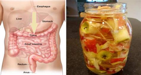 Should You Cleanse And Detox Your Colon by This Combination Can Clear Your Colon And Lower