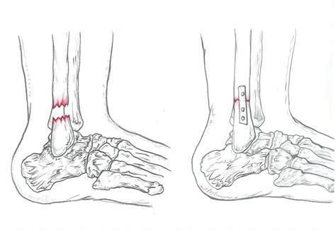 malleolo tibiale interno frattura caviglia riabilitazione frattura caviglia