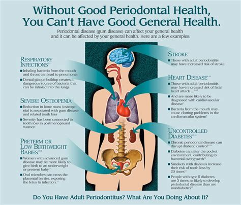Periodontitis And Systemic Diseases A Literature Review by Periodontal Disease Killingly Putnam Danielson Northeastern Ct