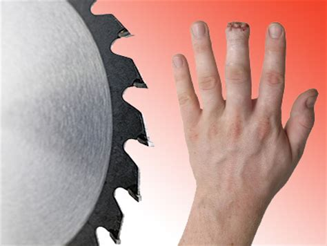 table saw injury helpline image gallery saw accidents