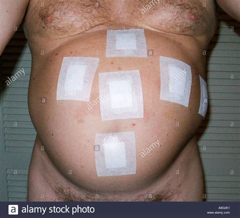 distended stomach the postoperative distended belly of a who has undergone stock photo royalty free