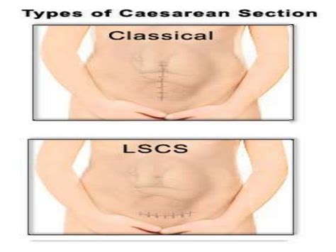 types of c section incisions caesarean section indications and types