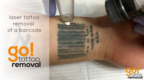 go tattoo removal laser removal of a barcode allentown pa