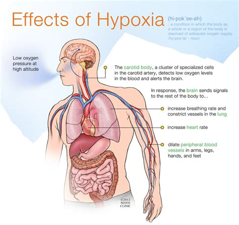 effects and aftermath of rape wikipedia the free hypoxia brain cerebral anoxia anoxia brain anoxic