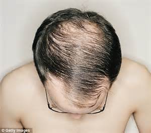 dr ellie cannon should i see a gp over my hair loss