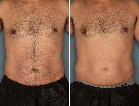 should thick hair pubic hair be waxed for women men laser before after paad wellness dermesthetics